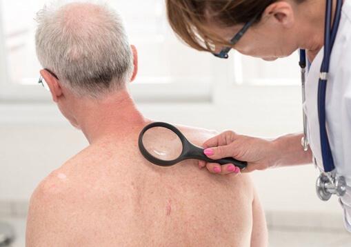 Skin Cancer Service